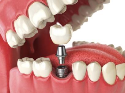 Laboratoire pour implant dentaire à Liège et Bastogne