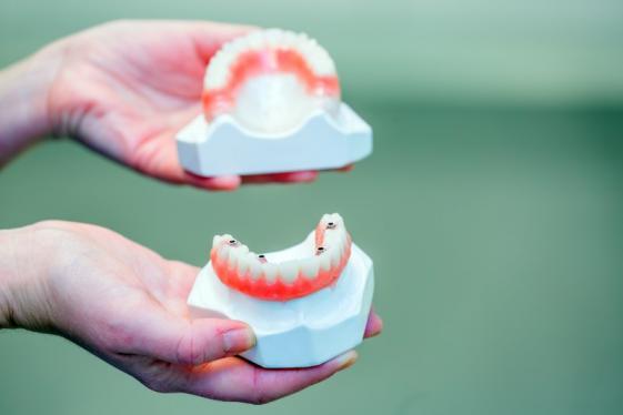 Laboratoire pour prothèse dentaire en résine à Liège et Bastogne