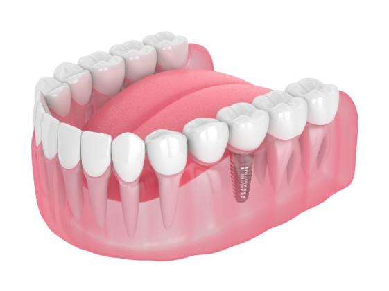 Bridges dentaires